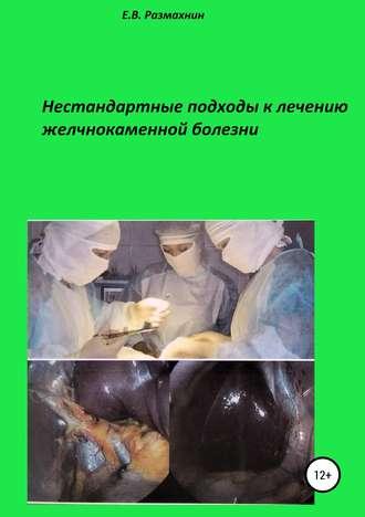 Евгений Размахнин, Нестандартные подходы к лечению желчнокаменной болезни
